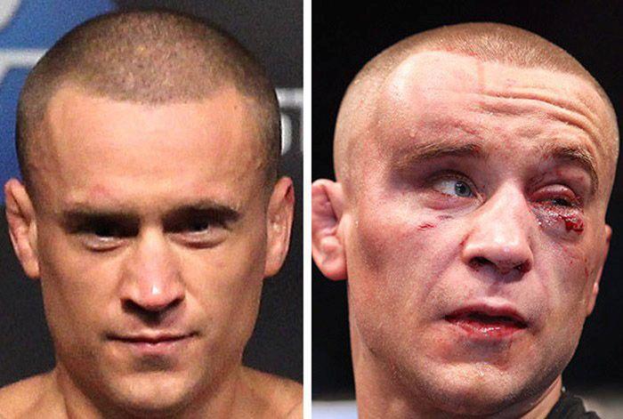 Бойци от UFC преди и след мач (СНИМКИ 18+)