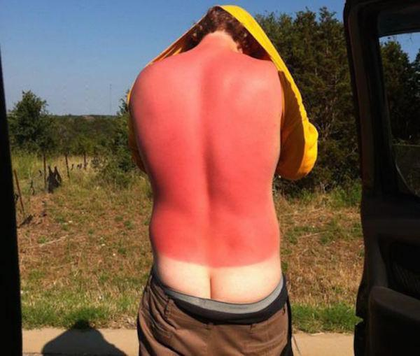 a-friendly-and-painful-reminder-to-wear-sunscreen-this-weekend-27-photos-22