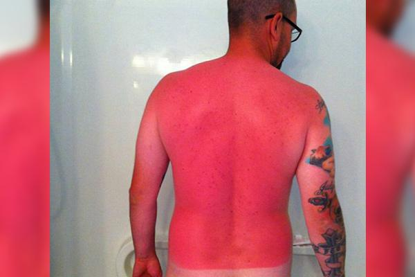 a-friendly-and-painful-reminder-to-wear-sunscreen-this-weekend-27-photos-28