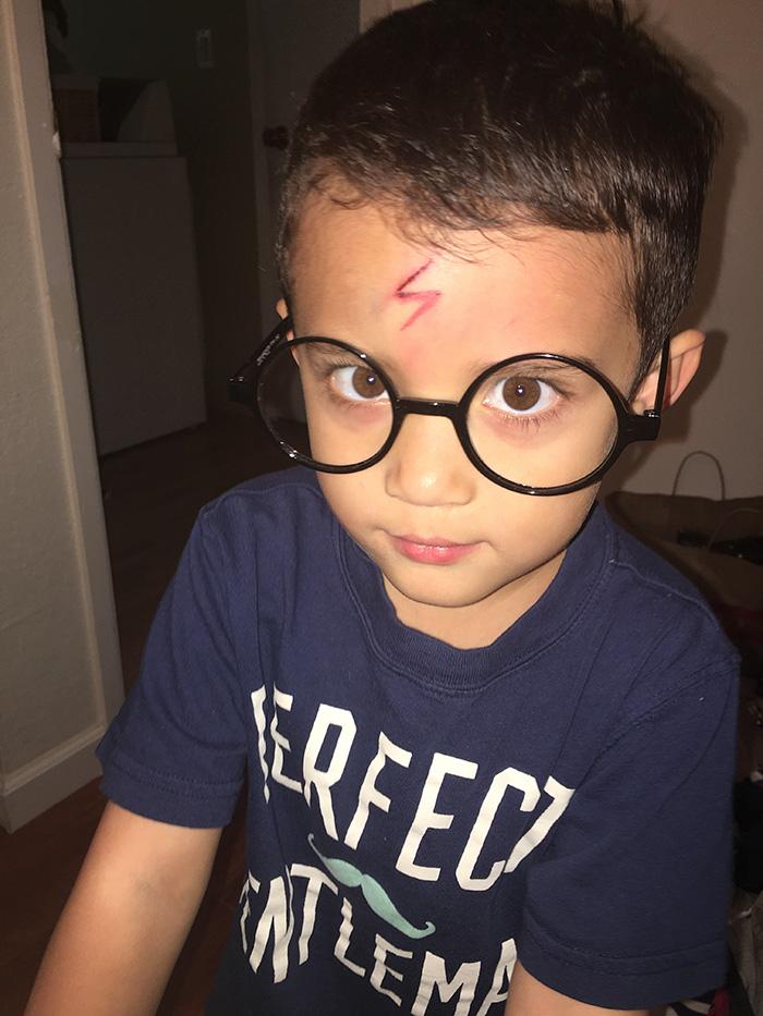 Той си разби главата, а майка му го направи на Хари Потър, за да е щастлив