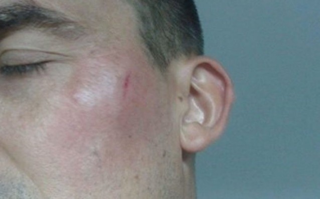 Уцелиха футболен съдия в главата с шише ракия (СНИМКИ)
