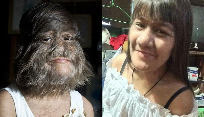 Най-косматата жена в света се омъжи и започна да бръсне лицето си