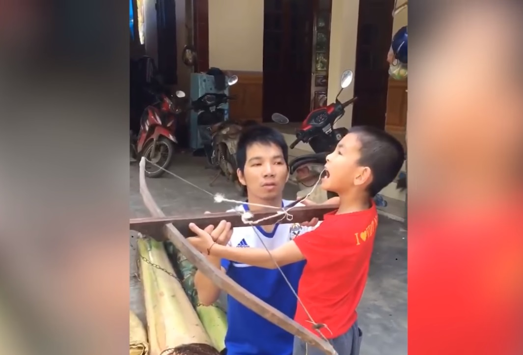 Баща извади зъб на сина си с арбалет