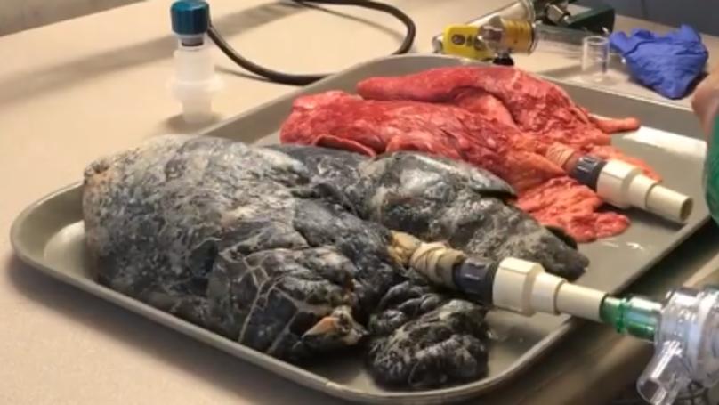 Мед. сестра демонстрира разликата между здрав дроб и този на пушач от 20 години (ВИДЕО)