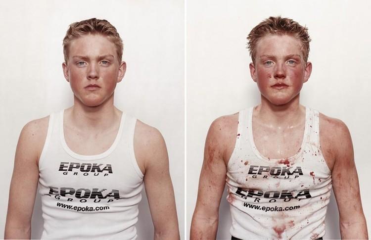 Млади боксьори: преди и след мач (СНИМКИ)